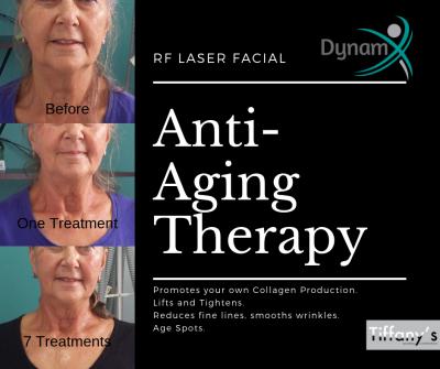 RF Laser Anti-Aging Facial